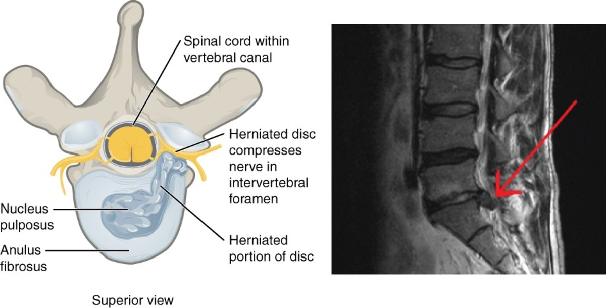 Illustration of a vertebra with a herniated disk and an MRI (magnetic resonance imaging) picture of a real herniation