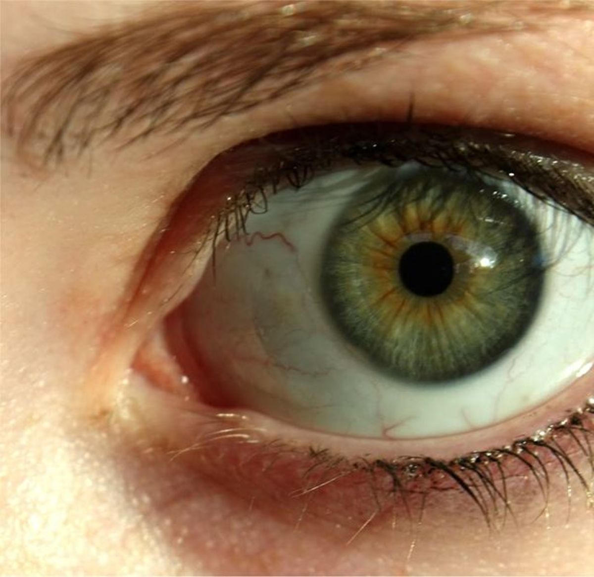 Prominent limbal rings enhance the beauty of the eye.