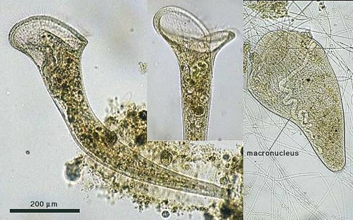A composite of Stentor roeselii photos