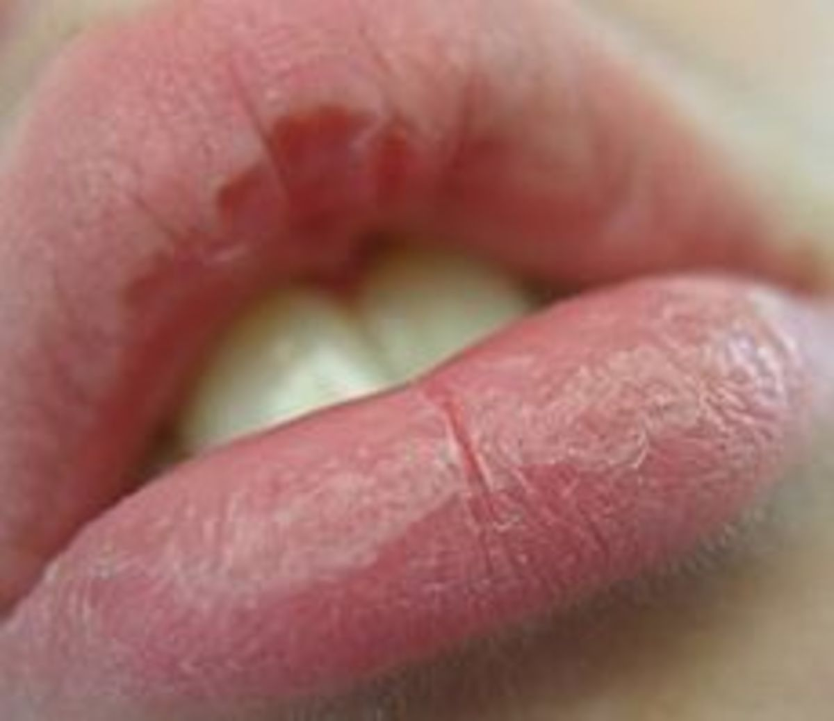 11 natural ways to cure chapped, cracked, and peeling lips | healdove, Skeleton