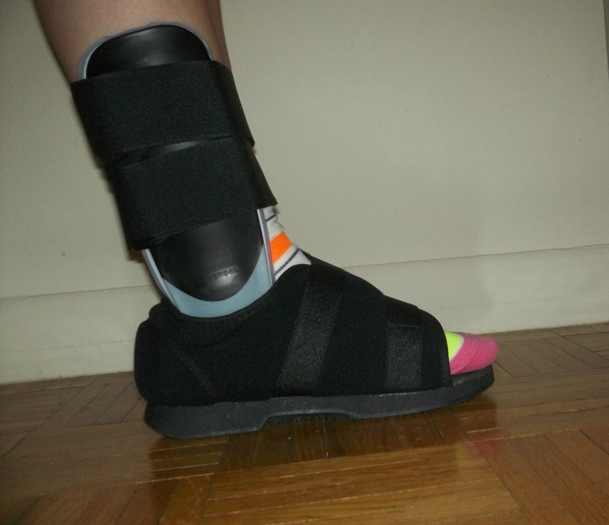 How to Get Around with a Sprained Ankle