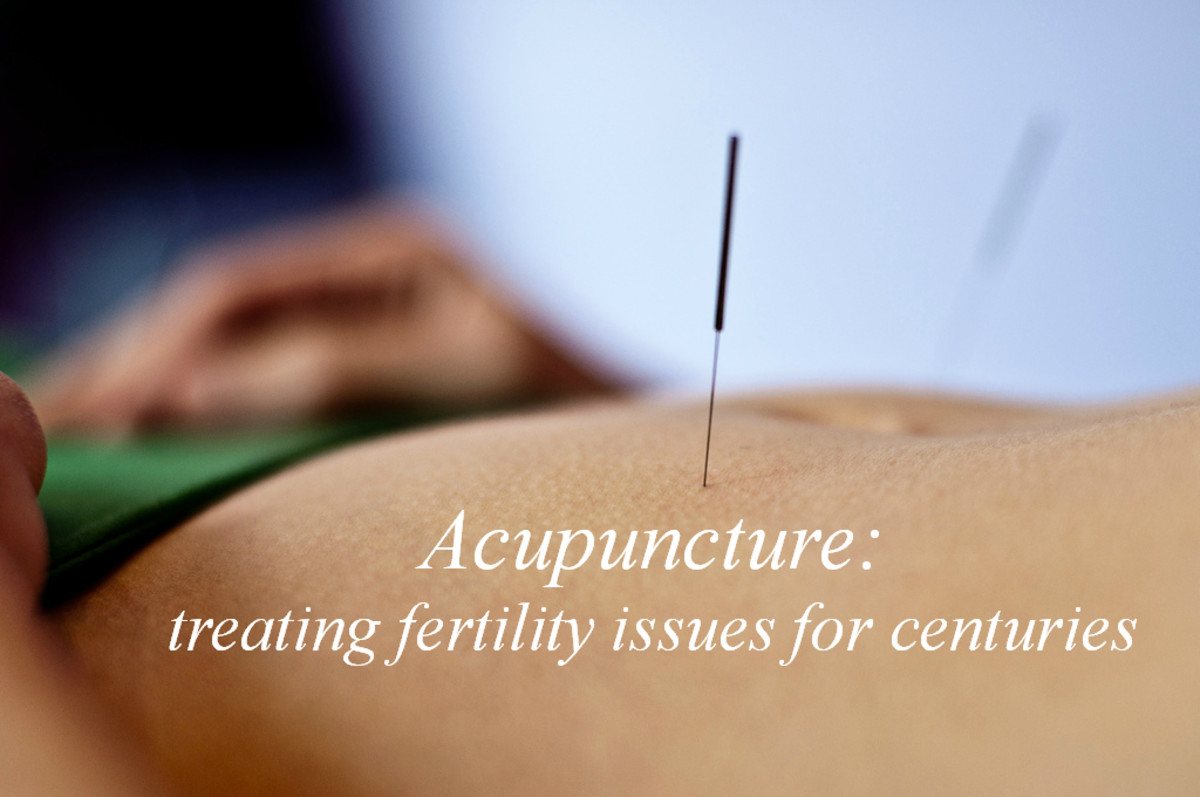 The Benefits of Acupuncture for Fertility Issues