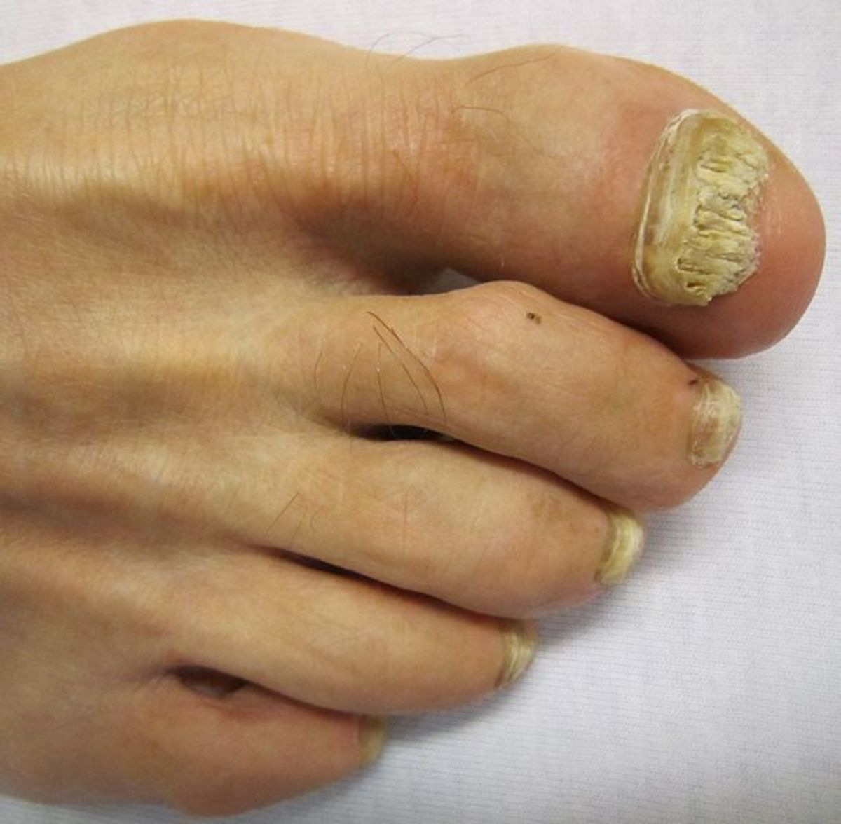 Toenail Fungus Home Remedies | RemedyGrove