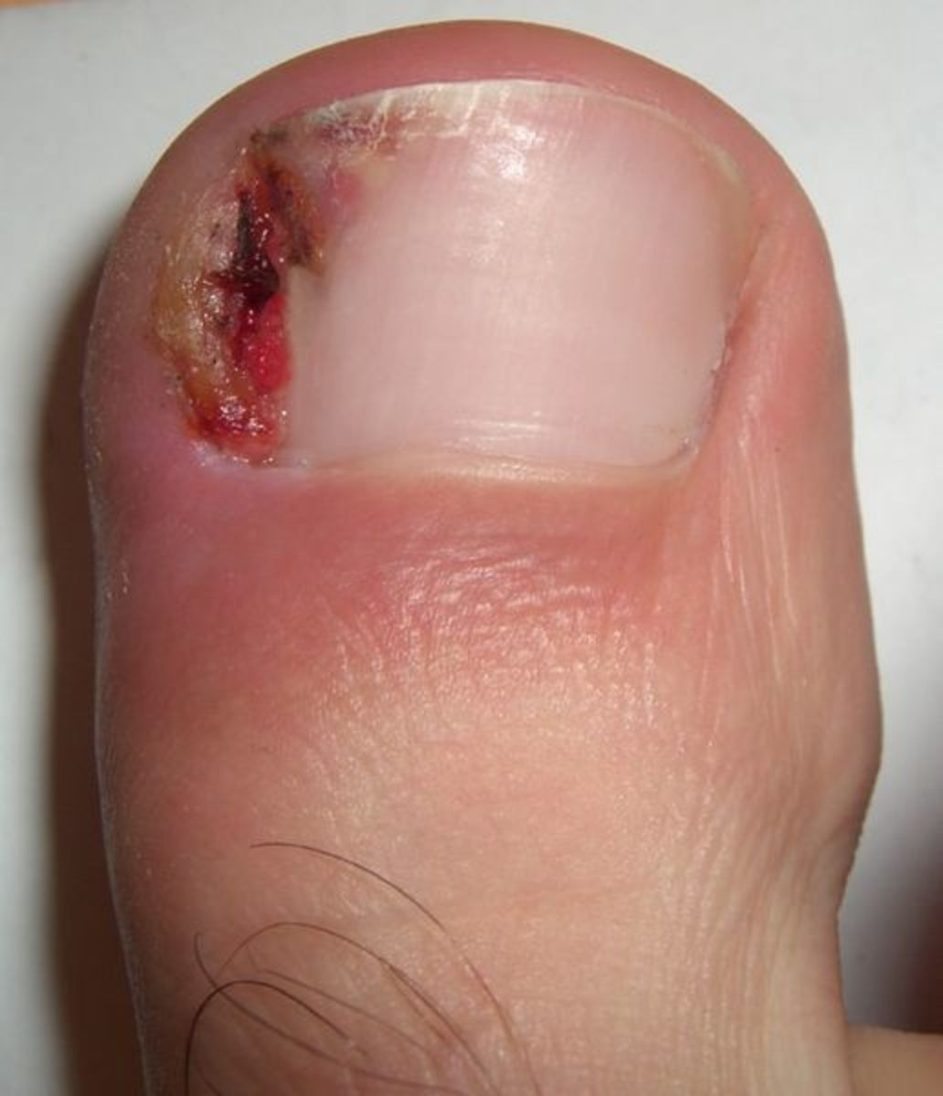 Bloody ingrown toenail