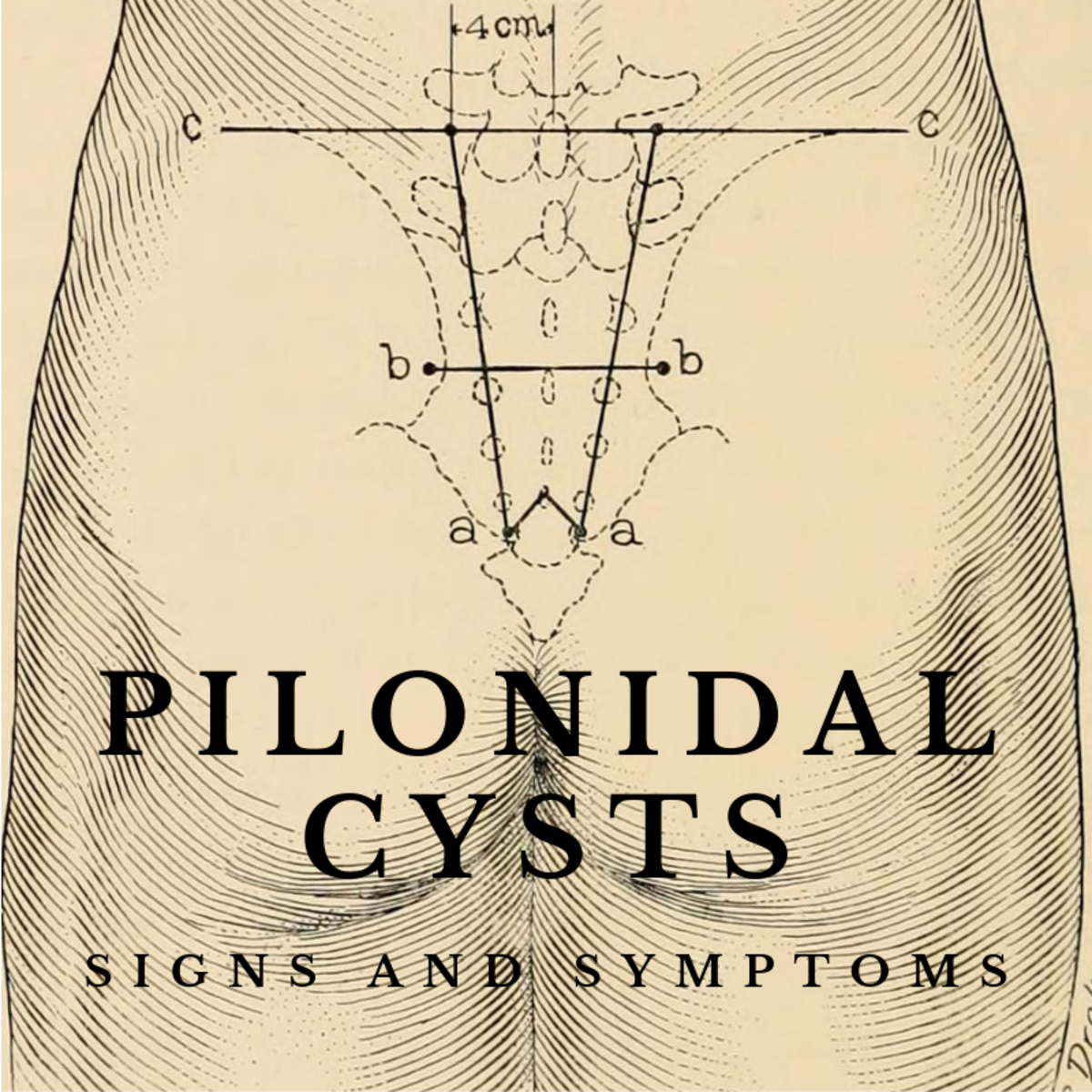 Pilonidal cysts are painful when left untreated. Find out what to look for.