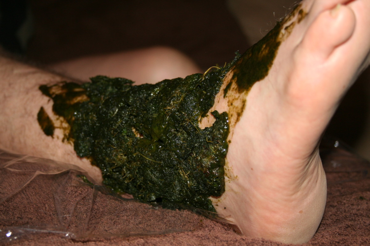Comfrey poultice on broken ankle