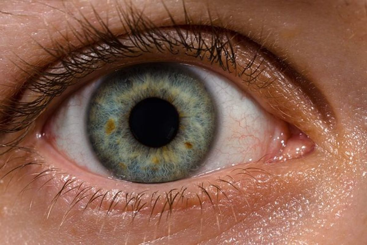 My Story: What to Expect Before and After Cataract Surgery
