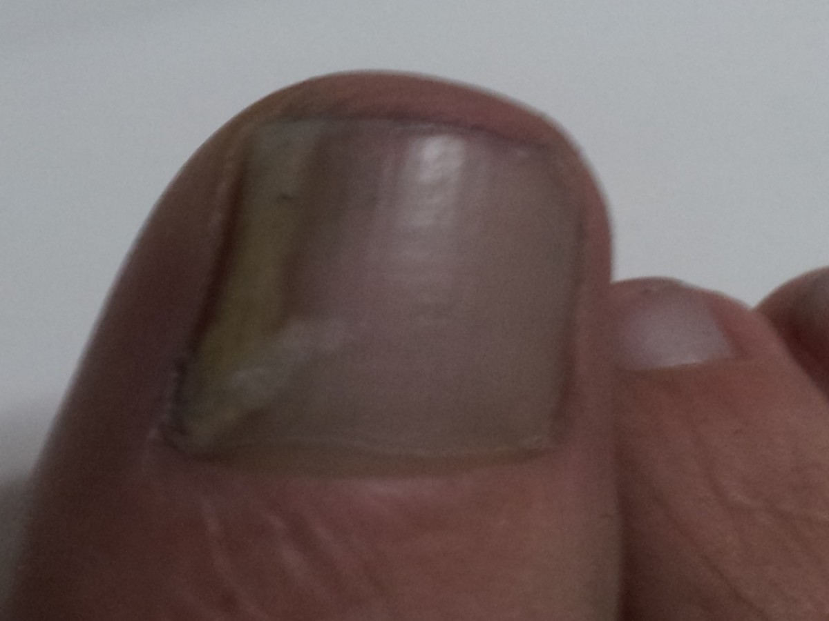 Use a Natural Remedy to Cure Toenail Fungus