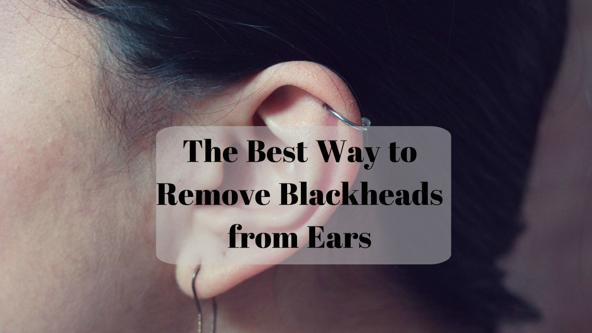 Learn a less painful method to eliminate blackheads from your ears.