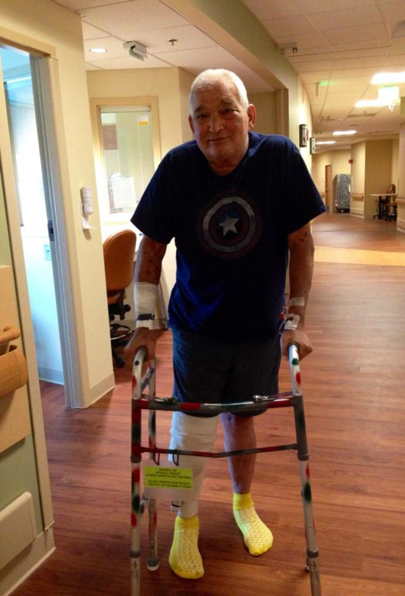 This photo was taken by me, the day after total knee replacement surgery at Florida Hospital East Orlando.
