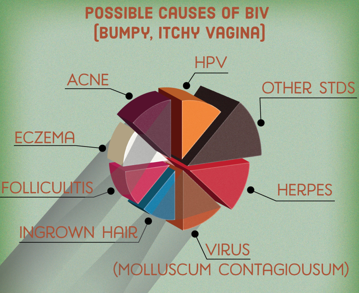Infographic: Possible Causes of Itchy, Bumpy Vagina