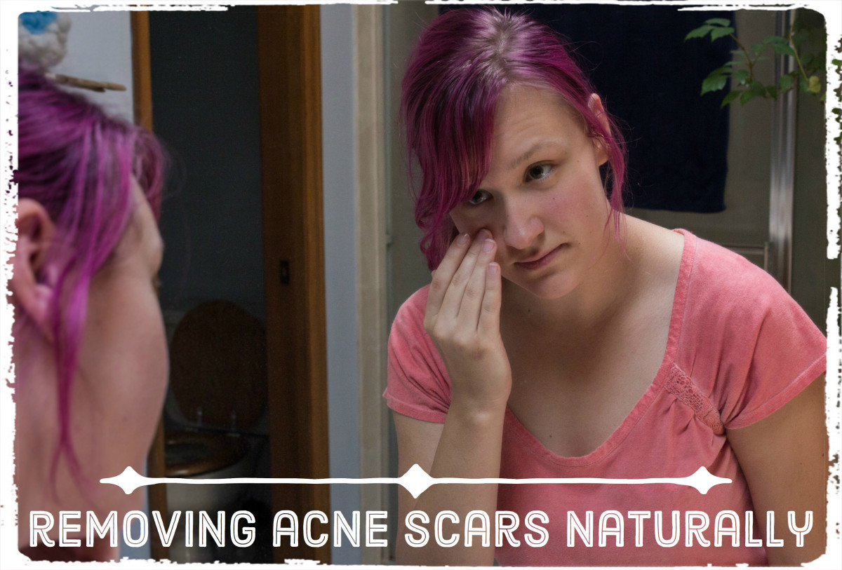 Follow these simple, at-home remedies to minimize and lighten the scars left behind by acne.
