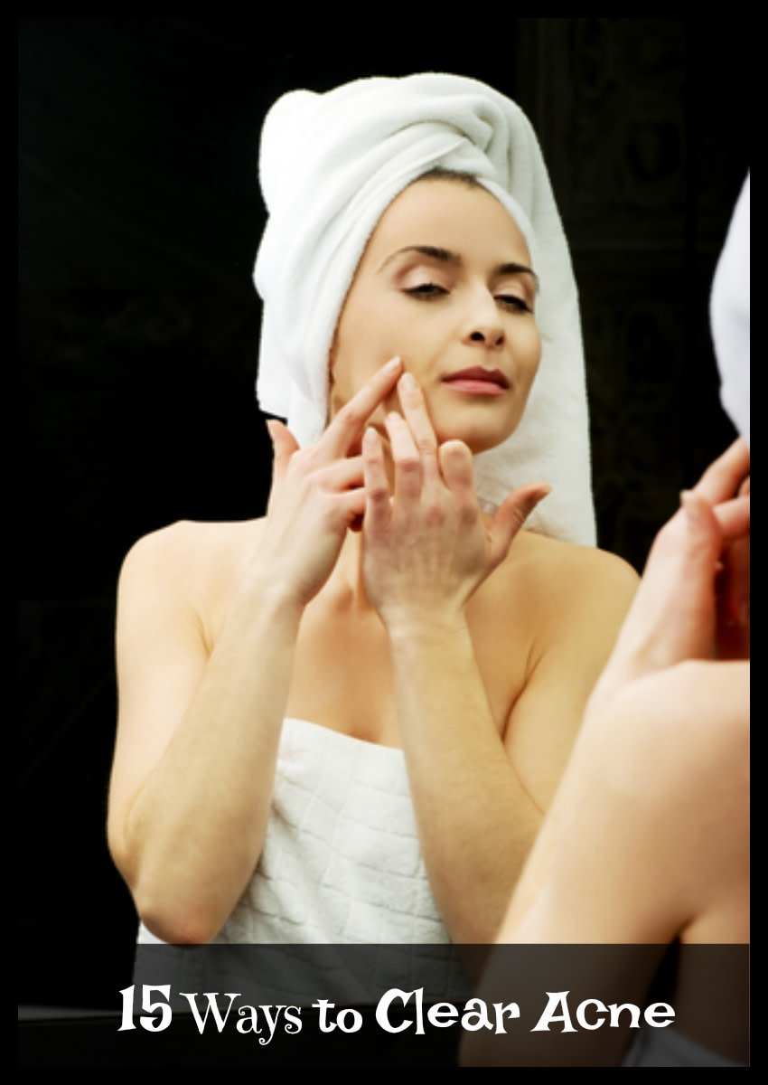There are many ways to deal with acne including natural methods and professional treatments