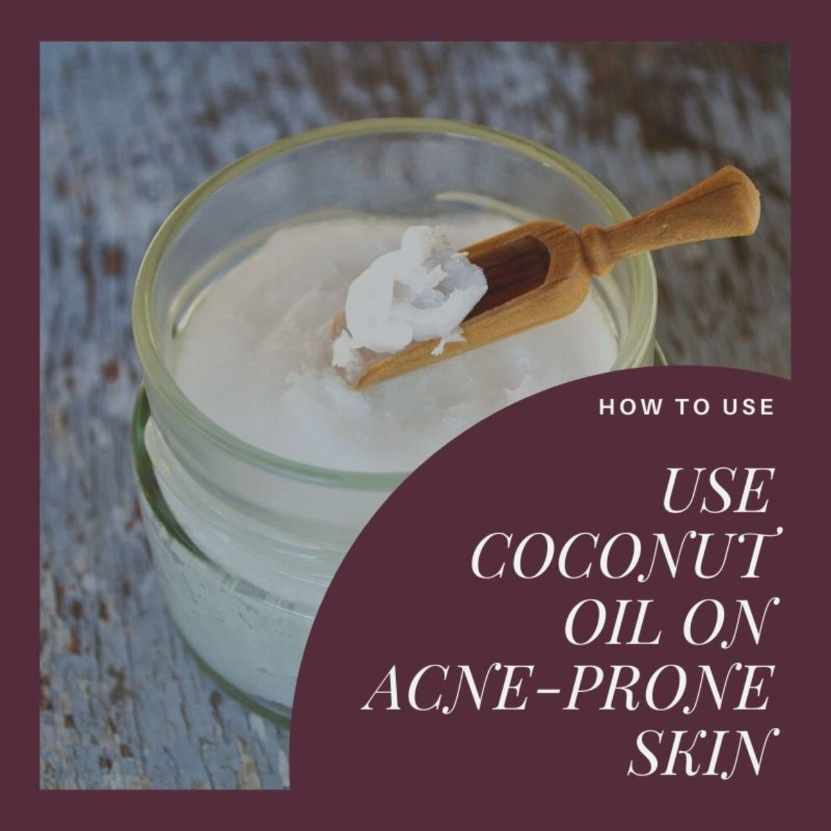 Coconut oil is great for keeping acne at bay. It also helps strengthen underlying skin tissue and removes dead cells that make skin appear dry and flaky.