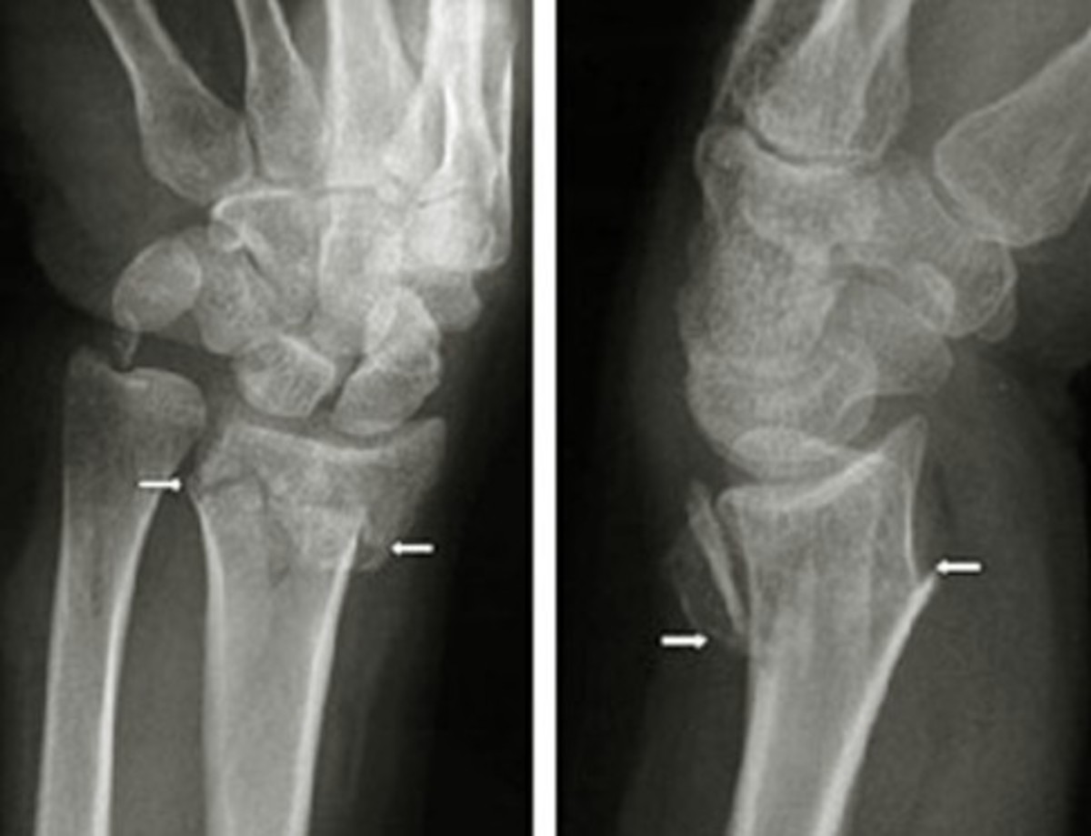 colles� fracture pictures treatment healing time