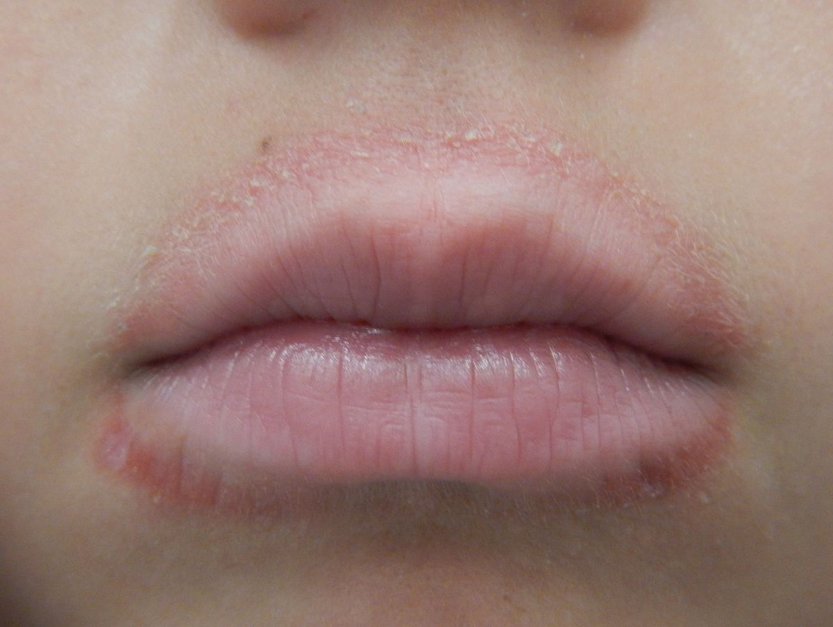 Causes and Treatments for a Rash Around the Mouth (With Pictures