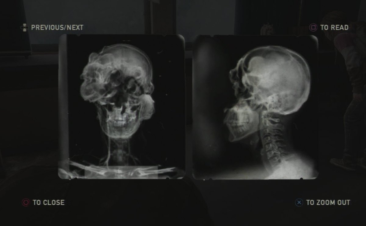 "Found in the University, this X-Ray shows the idea of what the fungus actually does to the human brain to create ""clickers""."