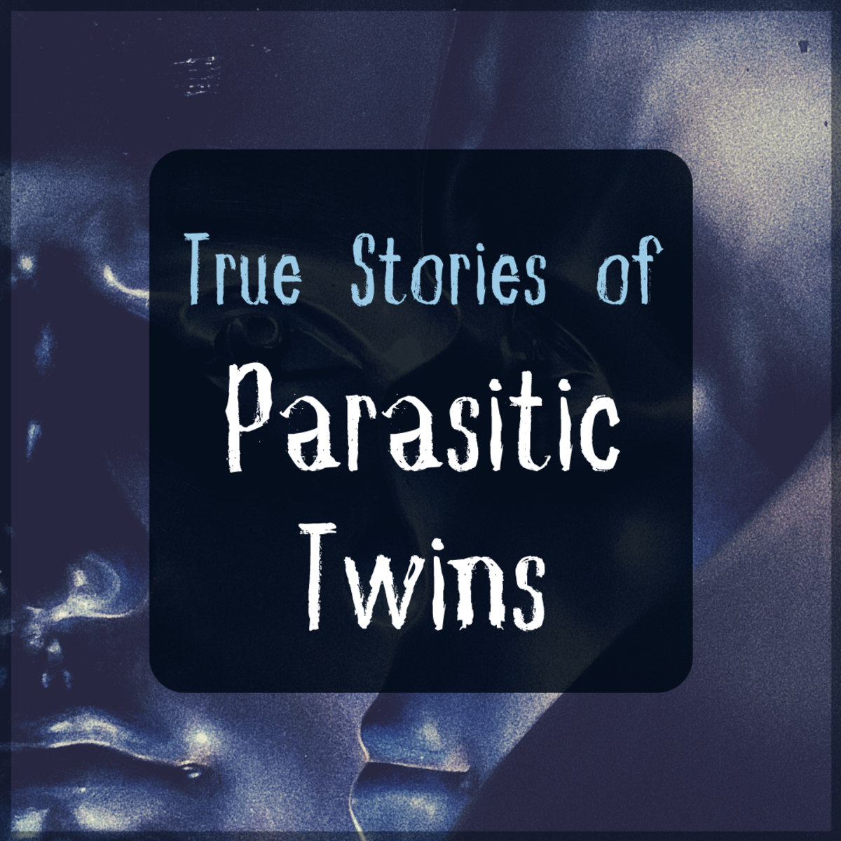 Never Alone: Bizarre Tales of Parasitic Twins
