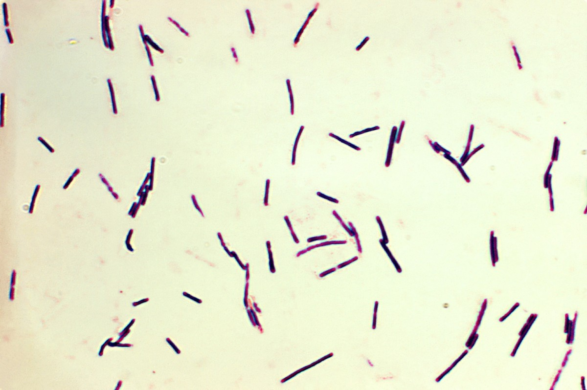 Clostridium perfringens cells