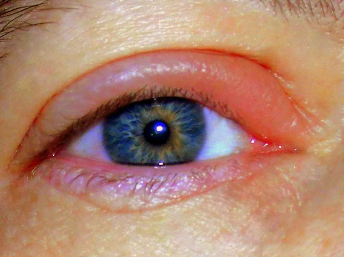 how to treat a stye in your eye at home