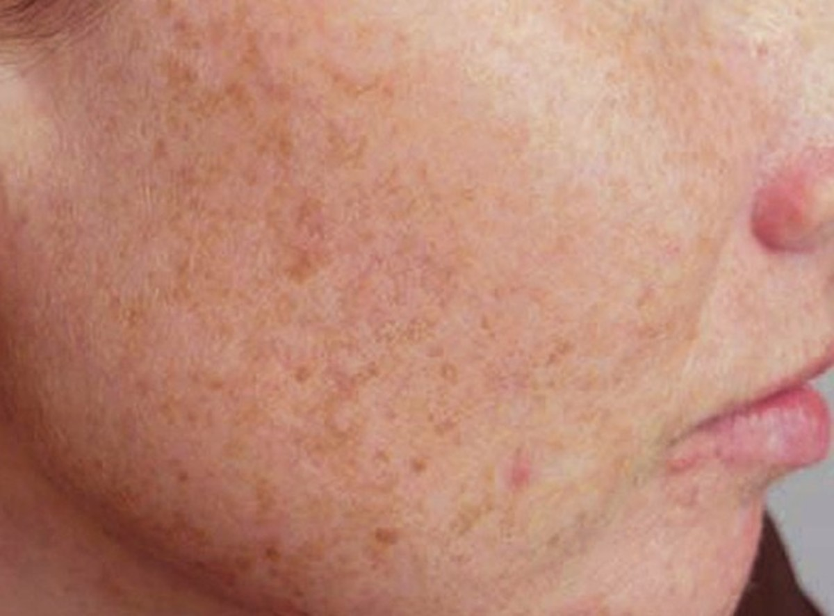 Liver Spots: Causes, Treatments, and Removal Options