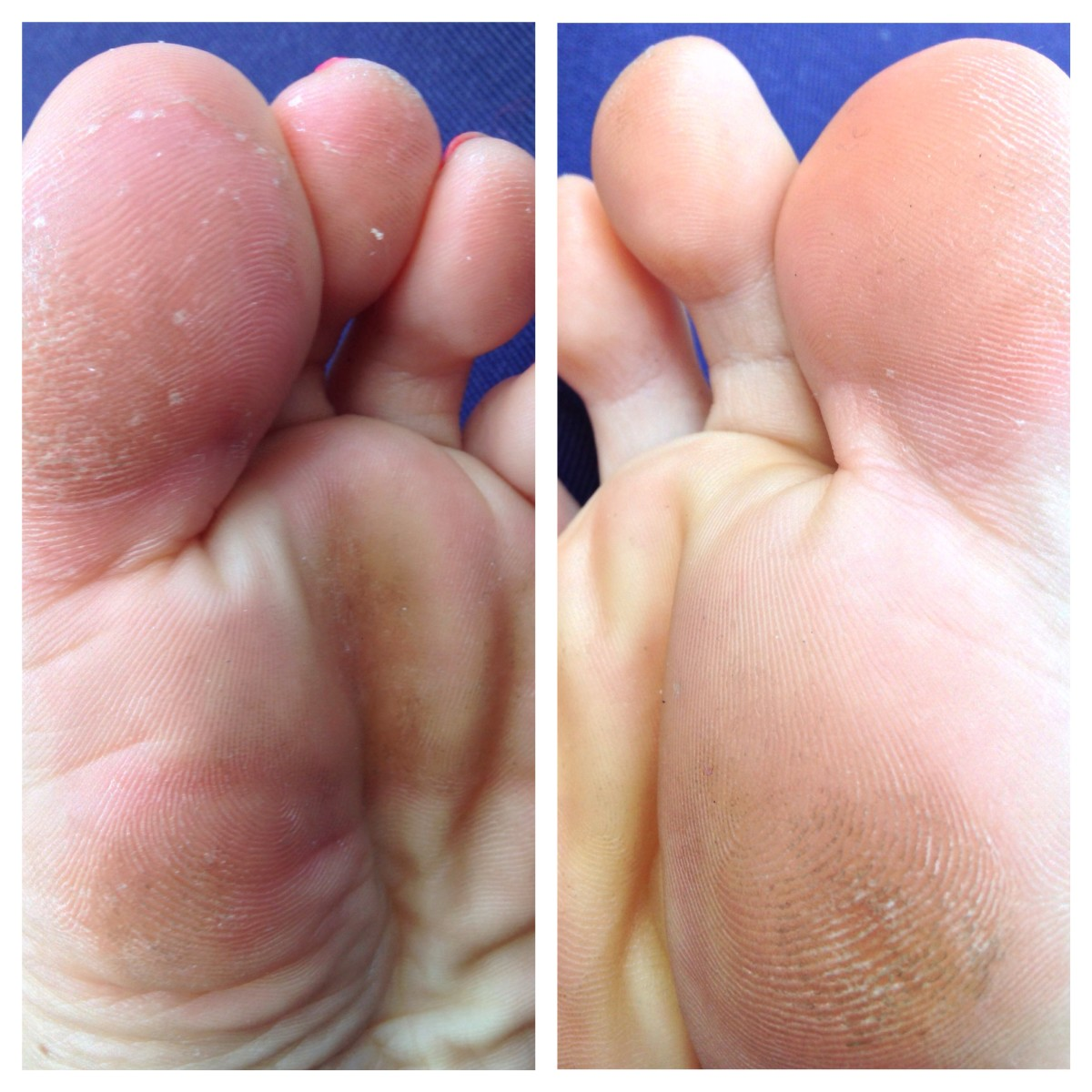 Mild athlete's foot (left) and athlete's-foot-free (right).
