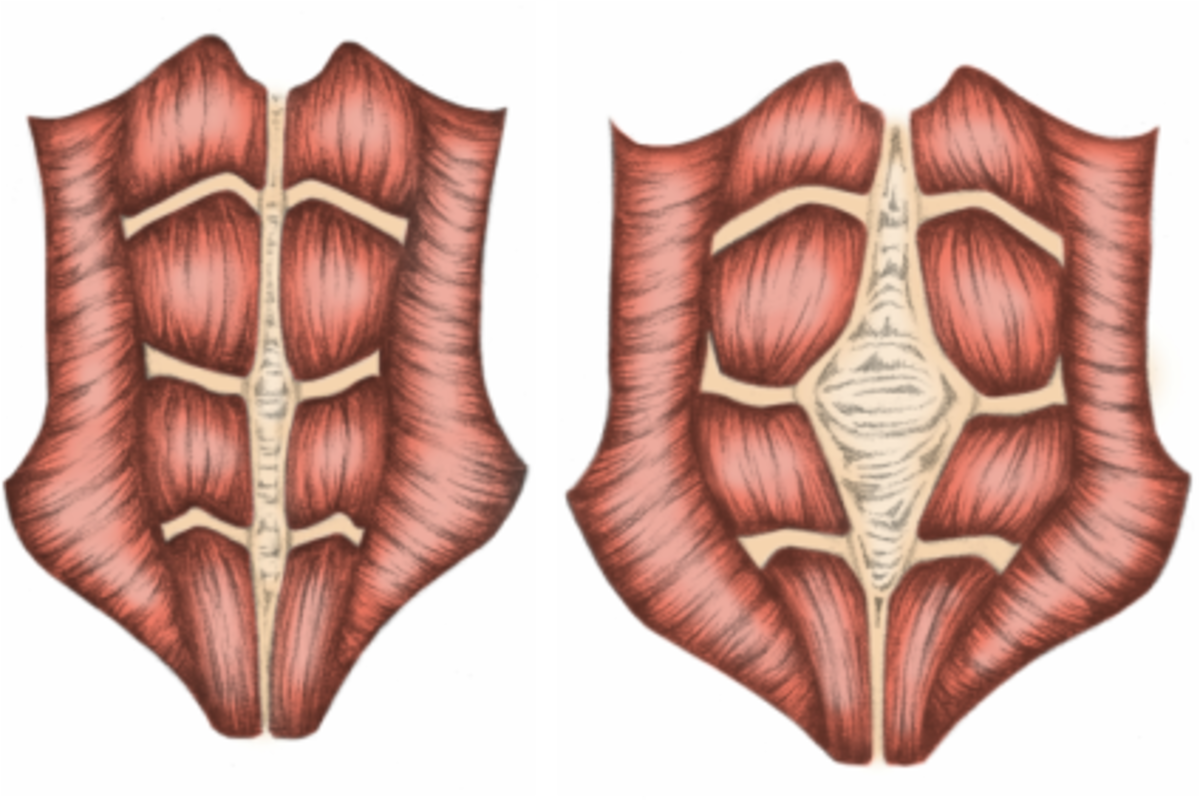 Diastasis Recti: The Mummy Tummy and How to Flatten It with Exercise