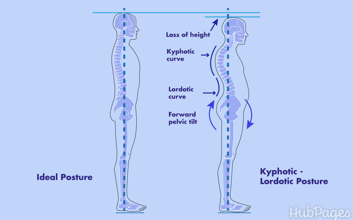 Cervical (Neck) and Lumbar (Back) Lordosis