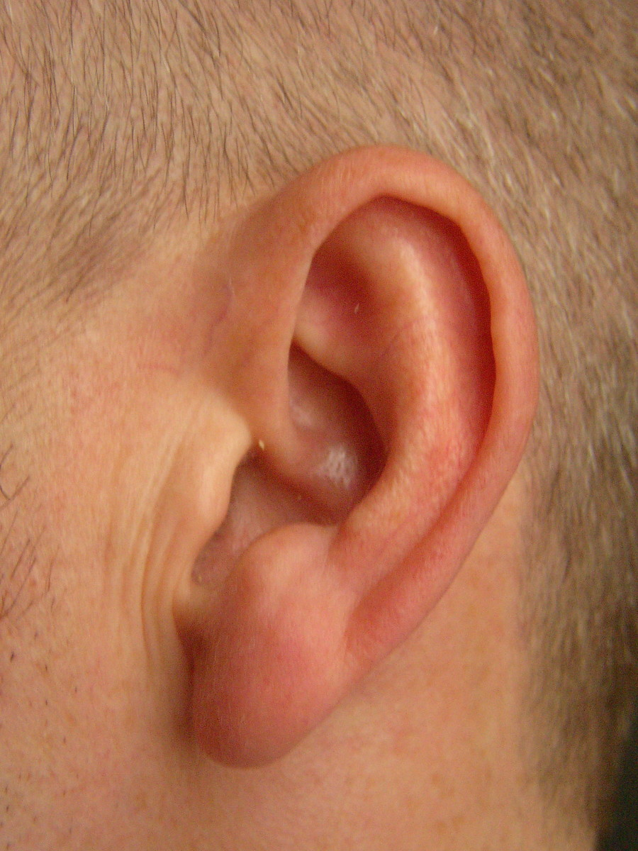 6 Ways to Remove Earwax Safely at Home