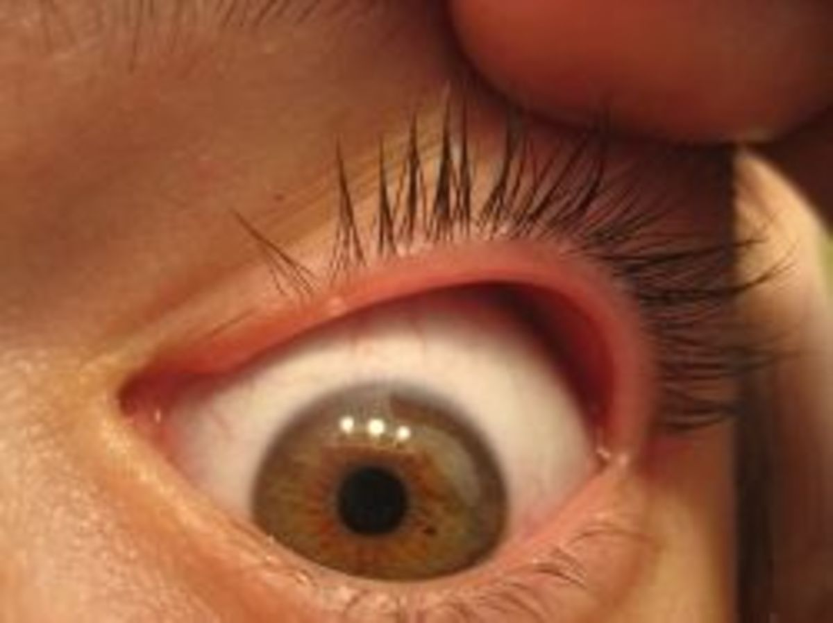 Do You Have Itchy Red Eyelids? | HealDove