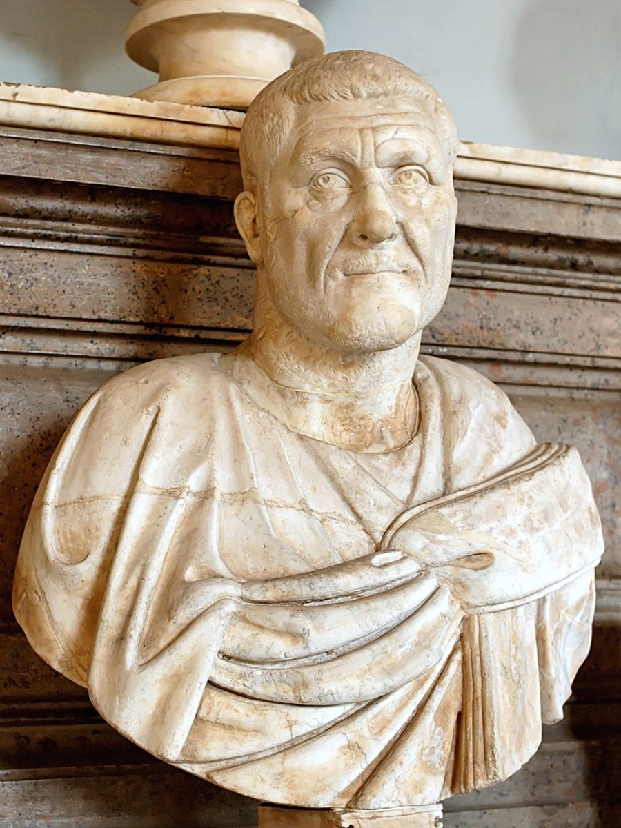 Bust of Maximinus Thrax. He was described as a very tall, burly man. Some historians theorise he may have had Acromegaly, a growth disorder.