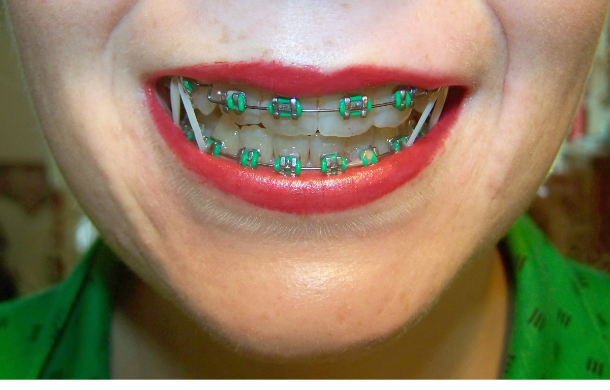 My Tips and Advice for Anyone With Braces