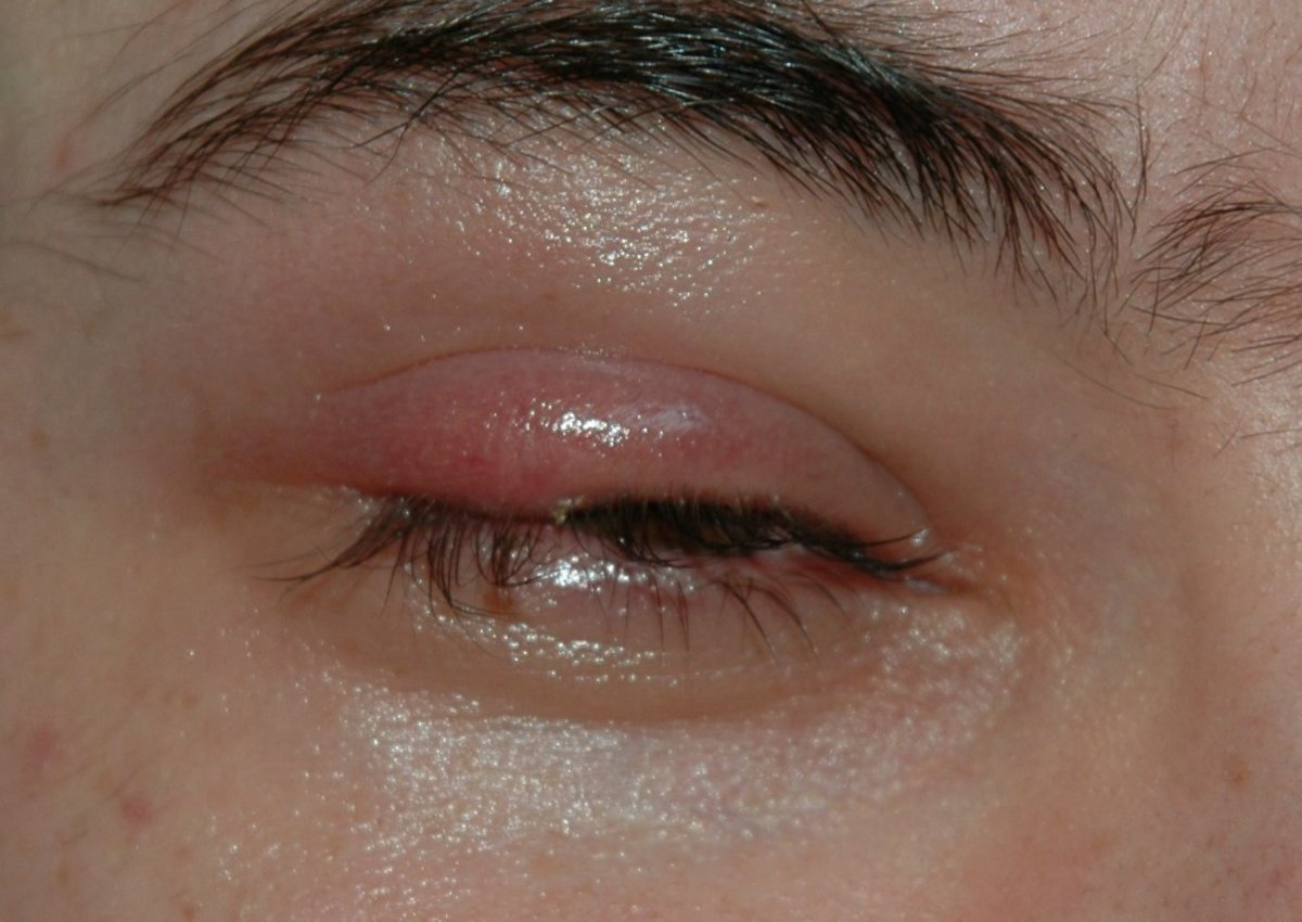 A external stye can appear on either the upper or lower eyelid.