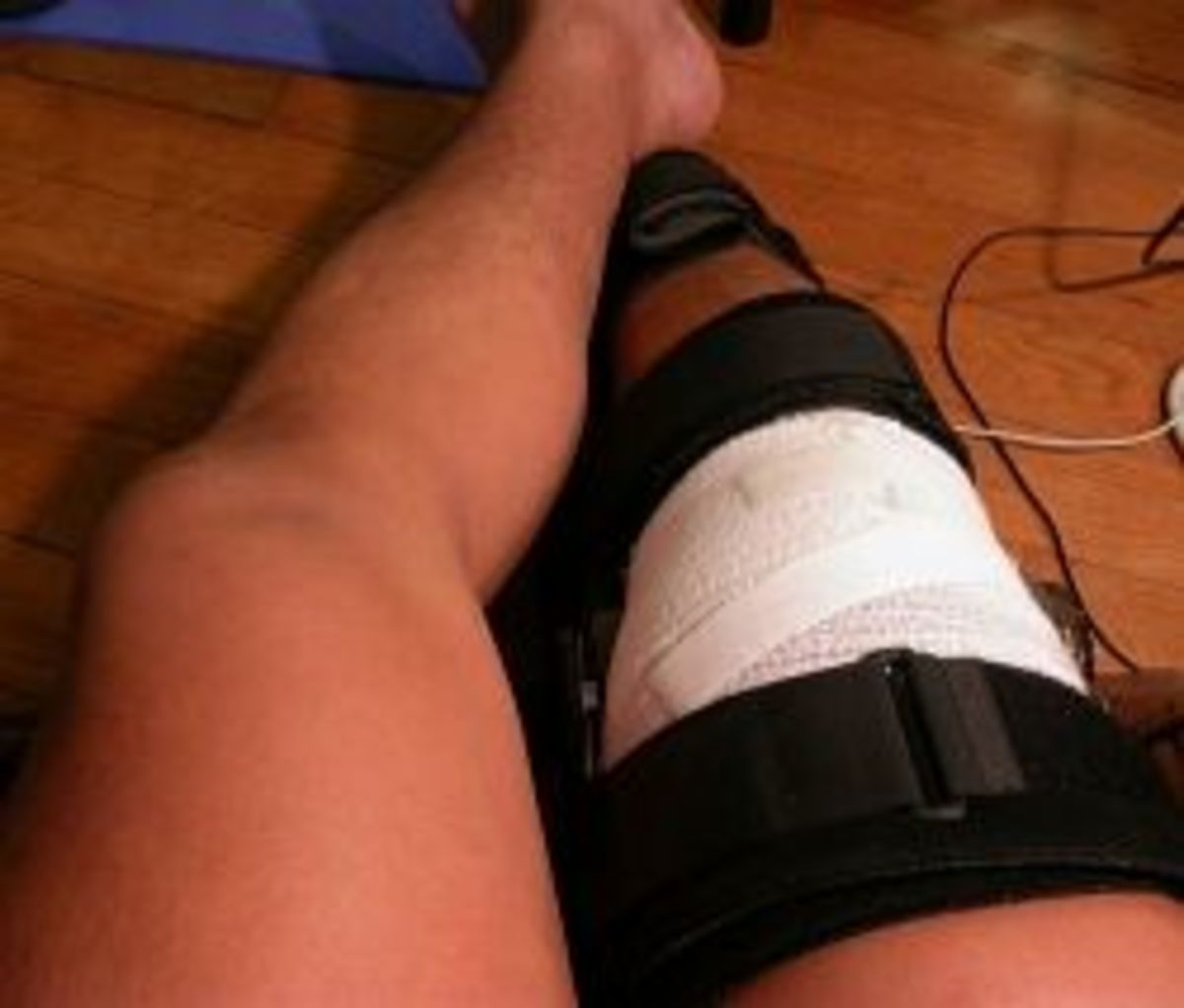 Injured Knee