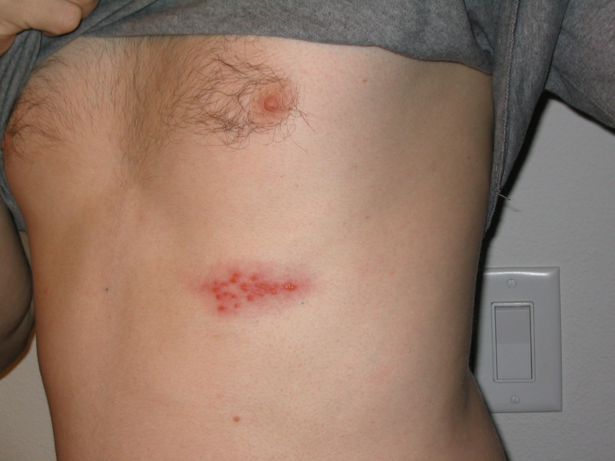 Shingles on chest