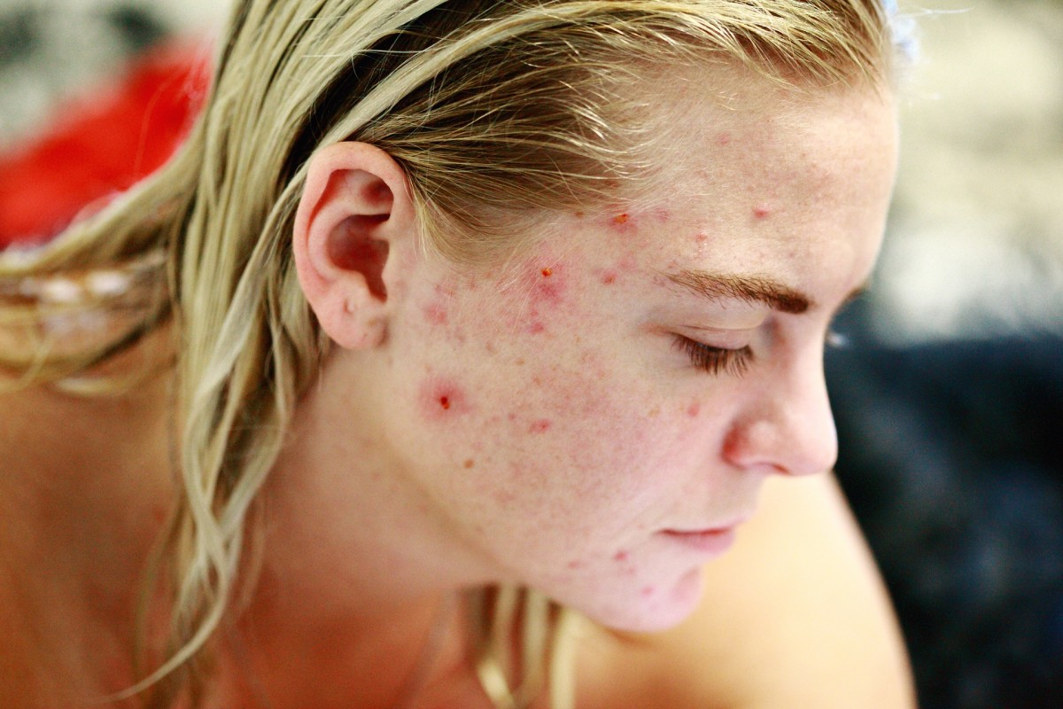 How to Get Rid of Teenage Spots