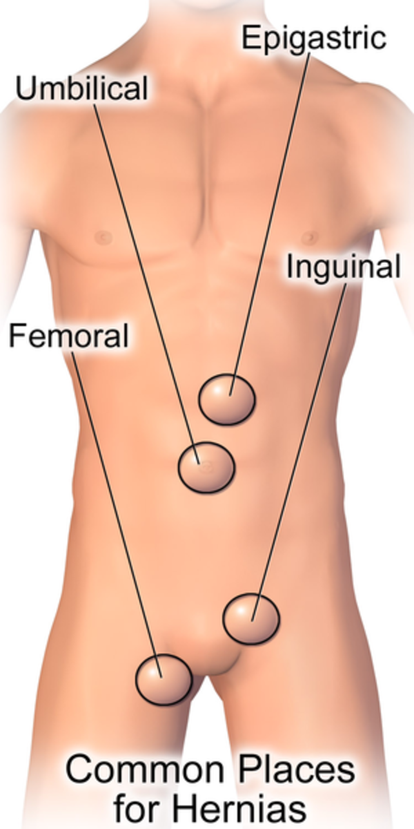 Diagram of common locations for a hernia.