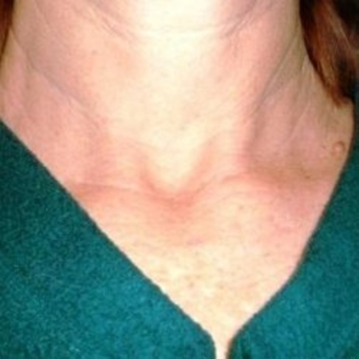 My thyroidectomy scar