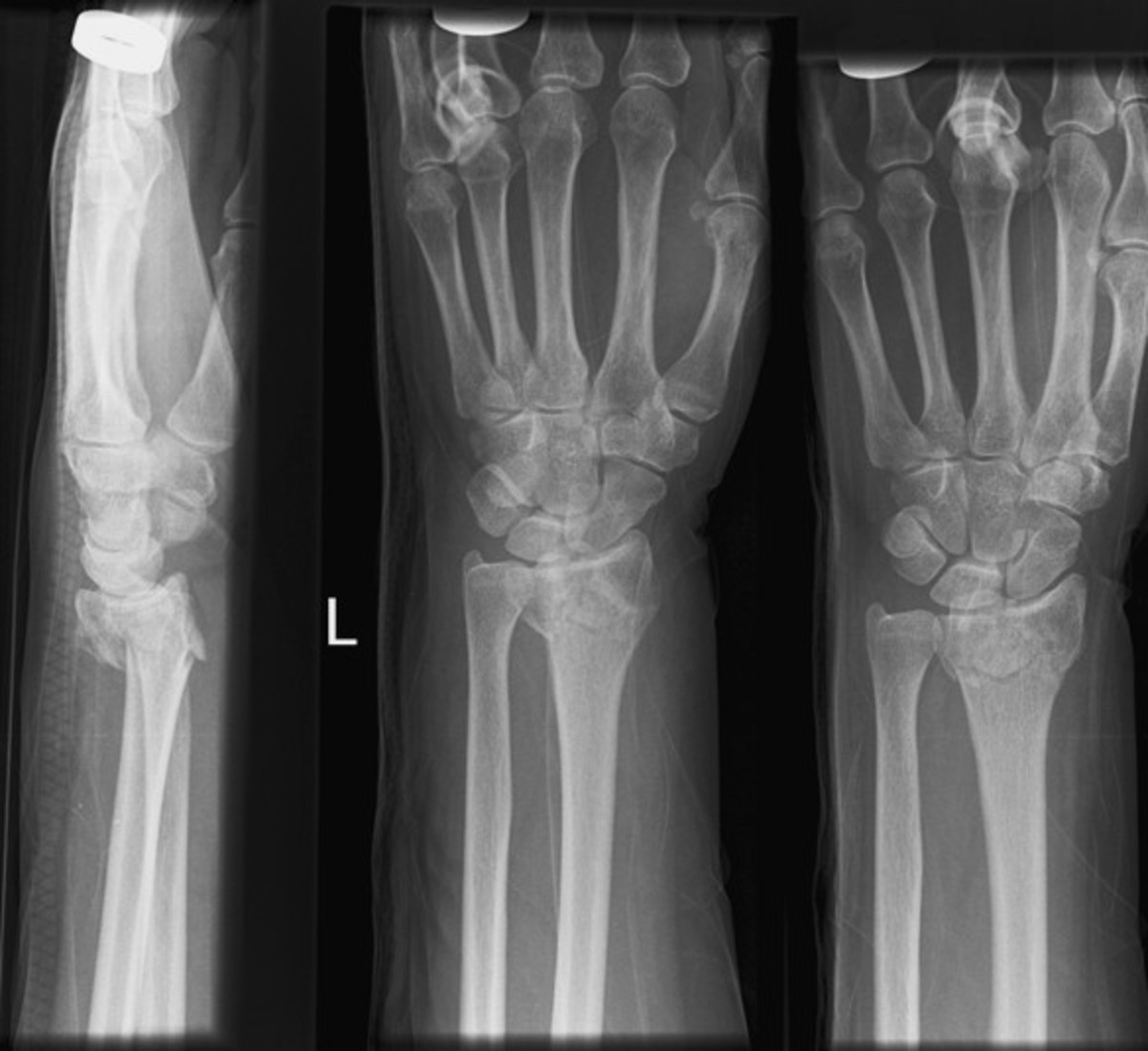 colles-fracture-pictures-treatment-healing-time-surgery-symptoms