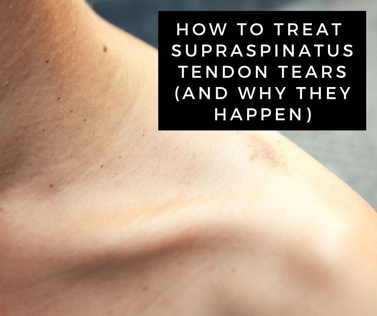 Supraspinatus tendon tears require specific rehabilitation of the rotator cuff and muscles that stabilize the shoulder blade.