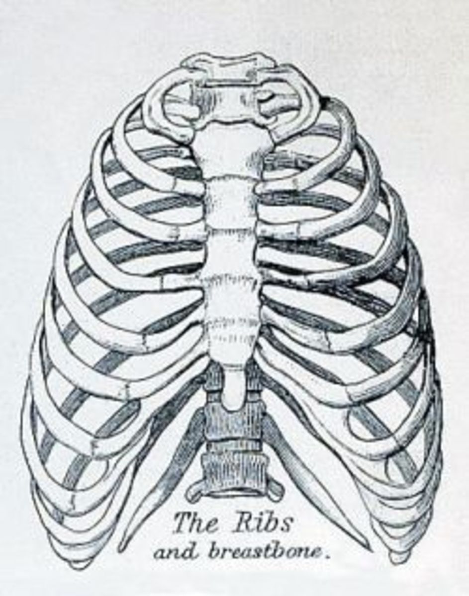 Costochondritis, or Tietze's Syndrome