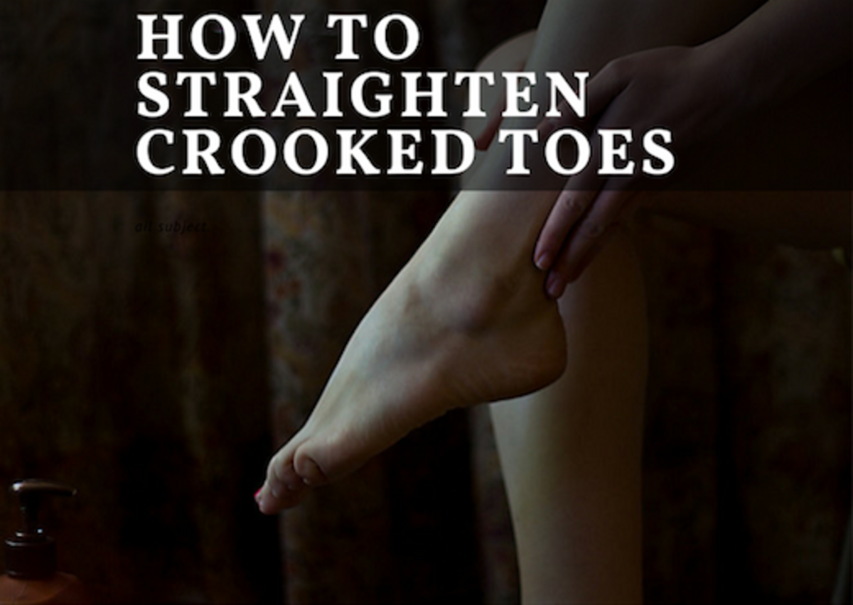 How to Straighten Crooked Toes Without Surgery