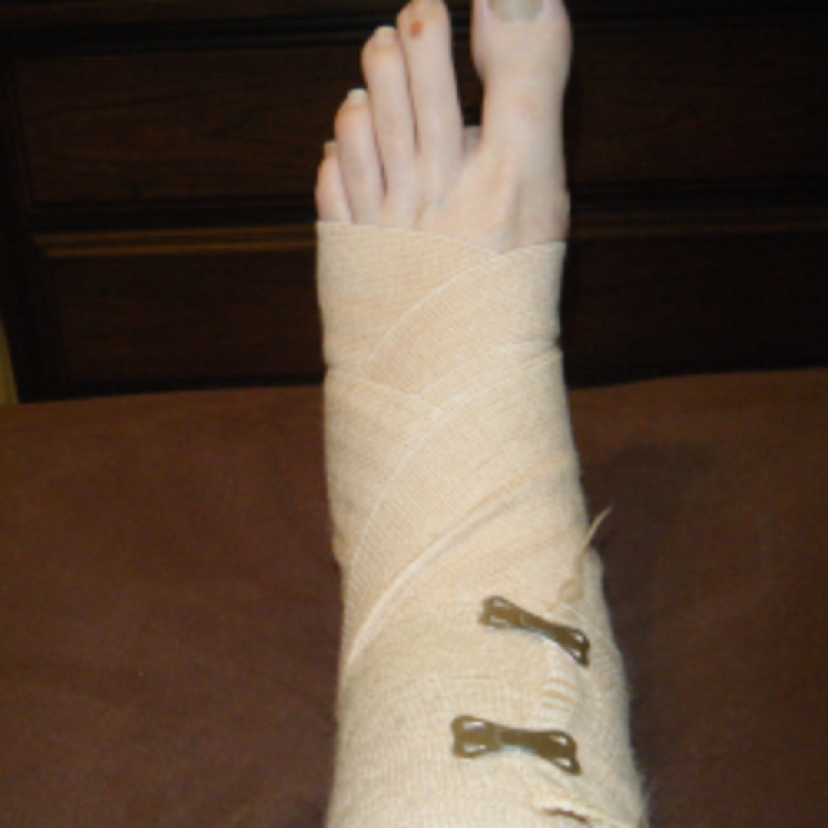 My Experience Recovering From a Broken Ankle