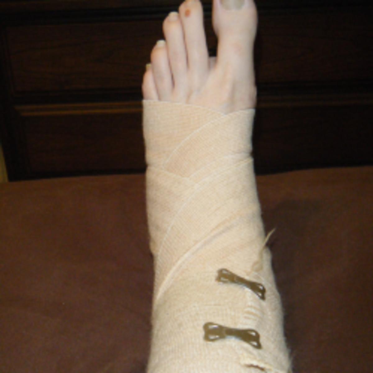 broken-ankle4