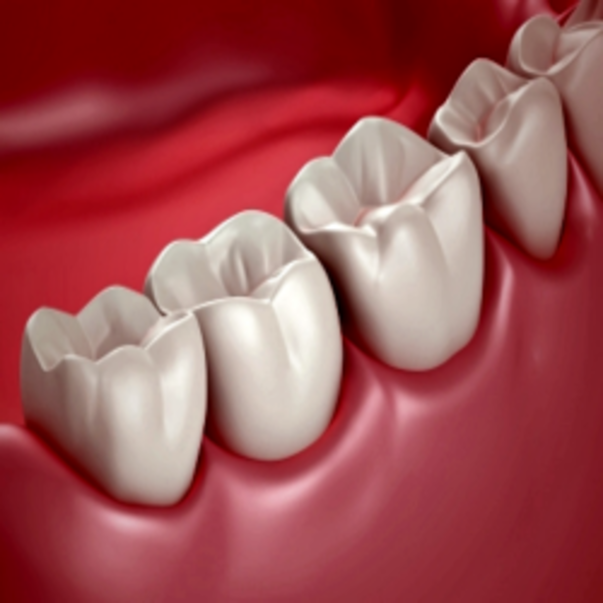 Wisdom Teeth Extraction Recovery Tips