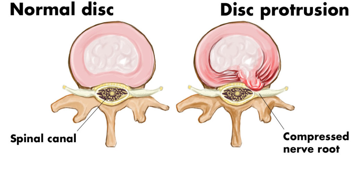 What is disc protrusion? On the left is a cross section of a normal disc; on the right is a cross section of a protruding, or herniated, disc.