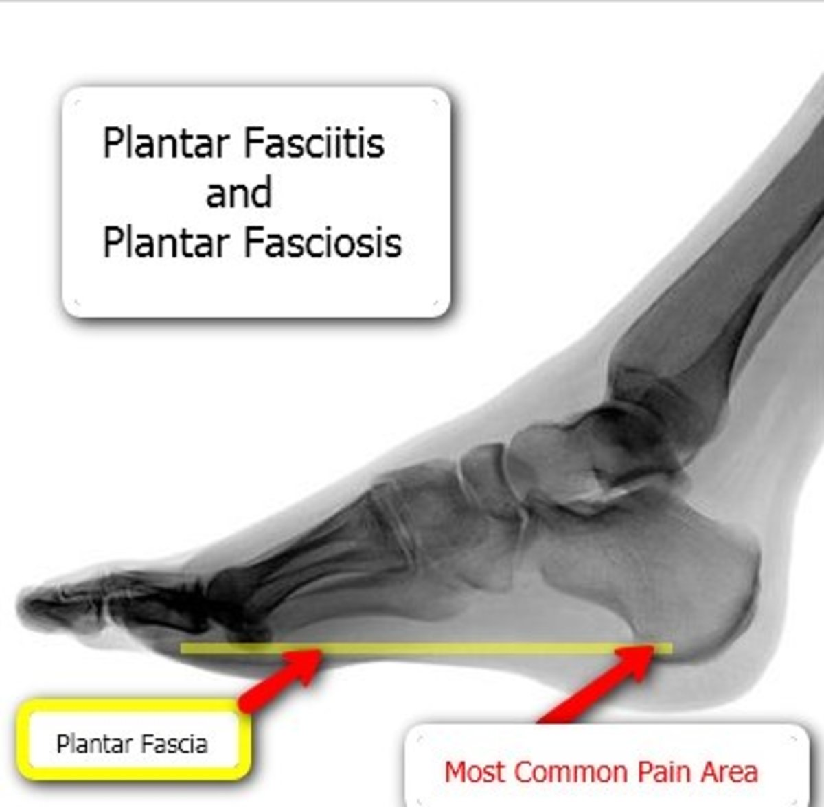 Plantar Fasciitis Information - Plantar Fascia Heel Pain © Counterpoise(image used with permission)