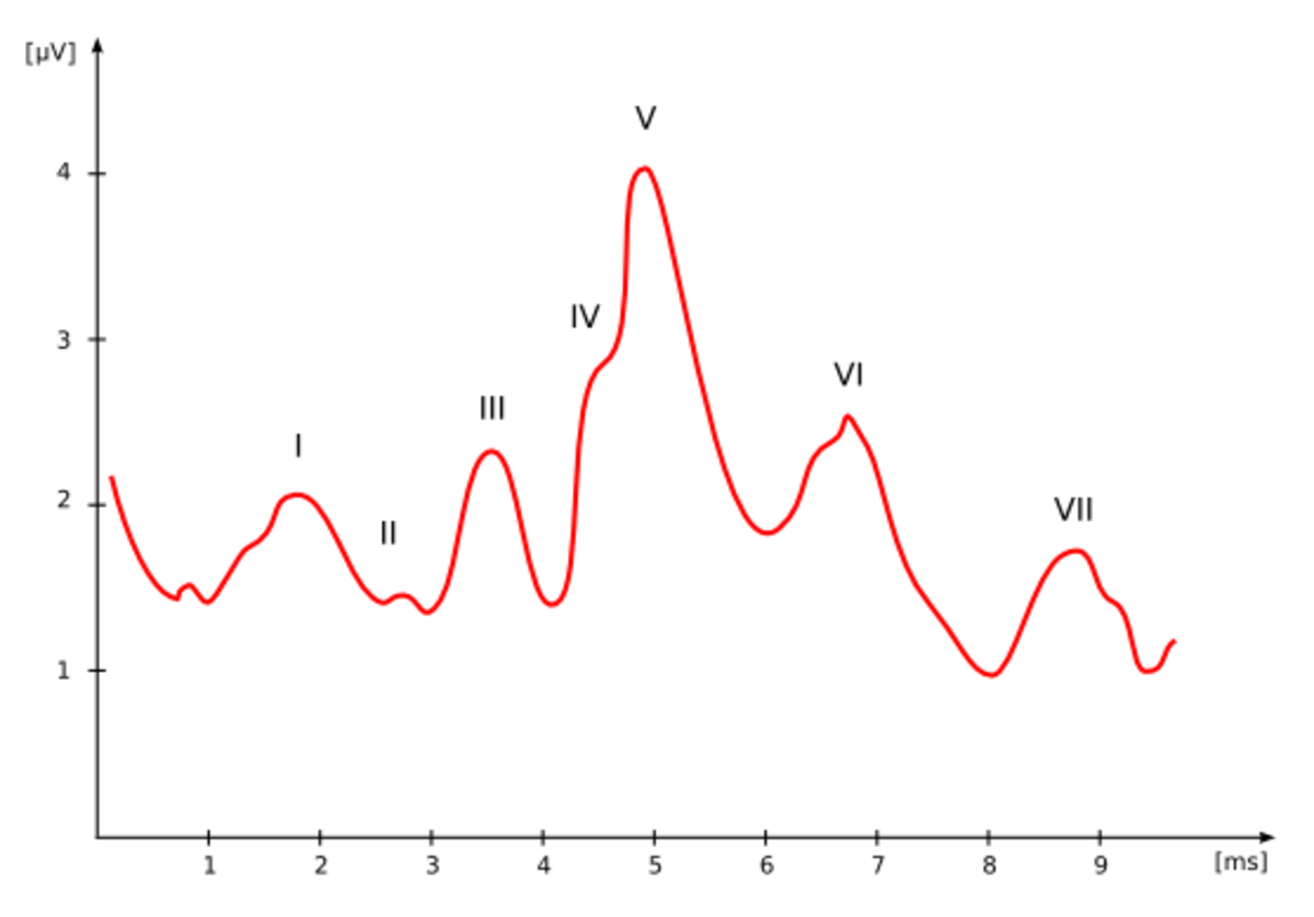 An ABR reading: the presence of Wave V (wave five) activity indicates the sound was heard. If the sound was not heard, the wave V would be flat.