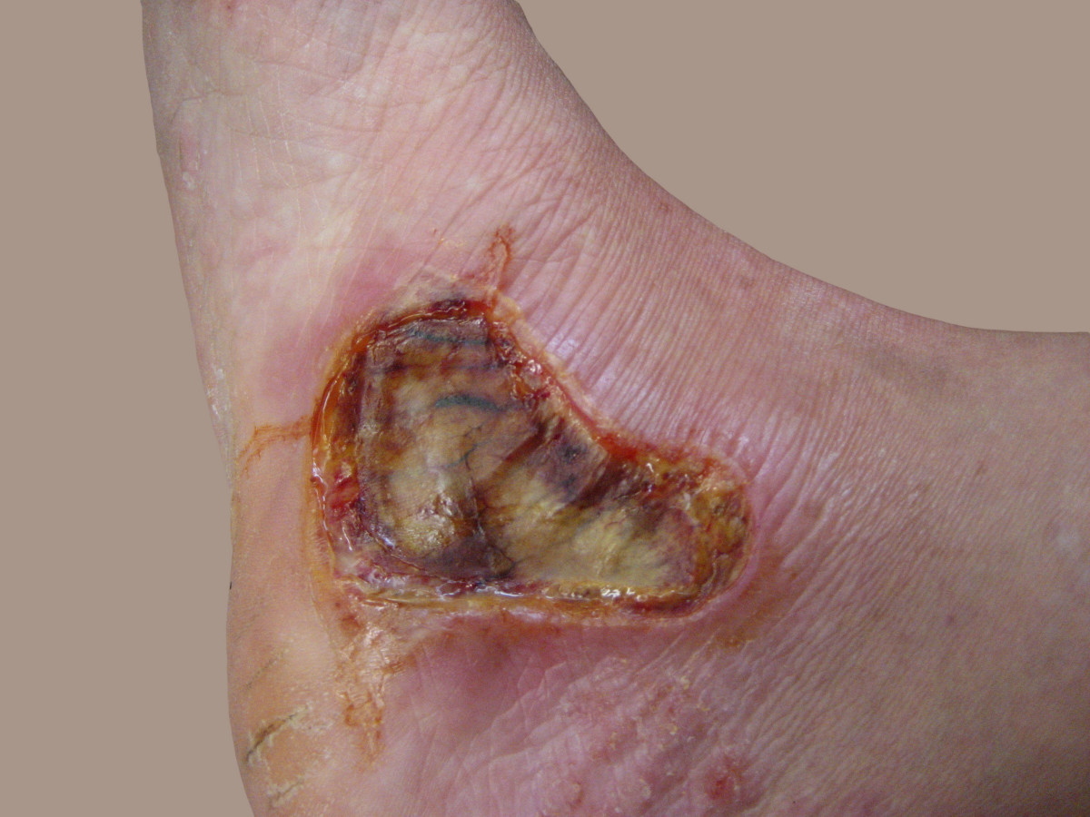 Eight-day-old third-degree burn on the foot.