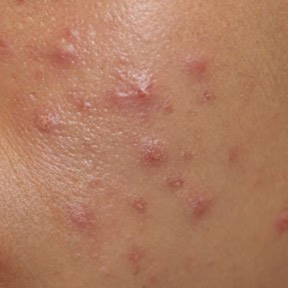 Pimples may appear alone or as an outbreak and are filled with white pus. Pimple sink deeper into the skin than herpes blisters.